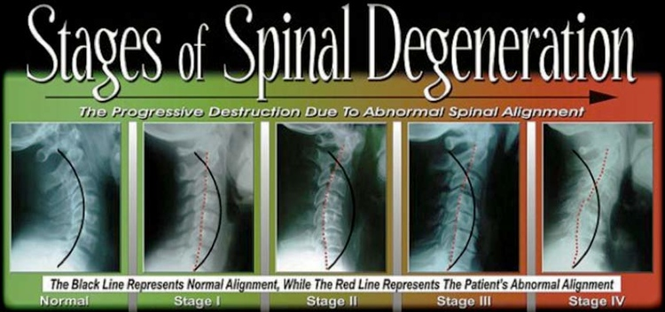 Sunnyvale Chiropractor | Sunnyvale chiropractic Spinal Degeneration |  CA |
