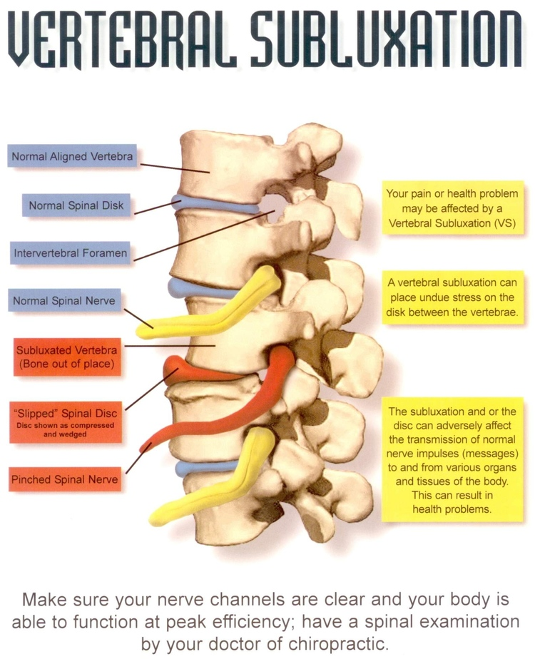 Sunnyvale Chiropractor | Sunnyvale chiropractic What is a Subluxation |  CA |